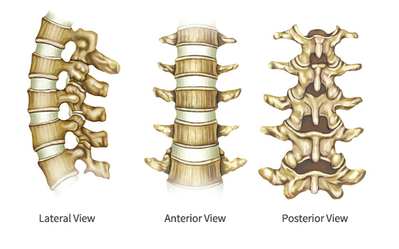 ICD-10-PCS Coding of Complicated Spinal Fusions: Qualifier J, Posterior Approach to Anterior Column